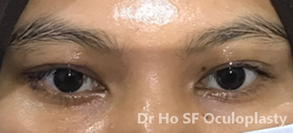 Post eyebags removal: left lateral pose
