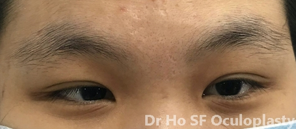 Pre op: this girl lack confidence due to squint appearance.  Also her field of vision is limited.