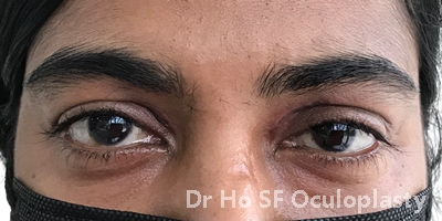 Post op: After removal and reconstruction, eyelid looks good with minimal trace of scar and she can close her eyes without difficulty.