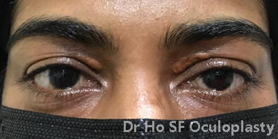 Pre op: bilateral upper eyelid xanthelasma.  Left upper eyelid was operated twice by general ophthalmologist.