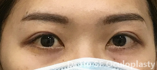 Post op:  (one week only). well formed double eyelid.  Eyes no longer appear 'squinty' after medial epicanthoplasty to narrow epicanthic fold.  The creamy appearance due to the cream patient put after operation.