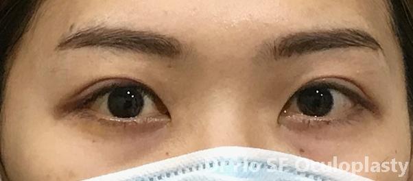 Post op:  Both eyes wide open.