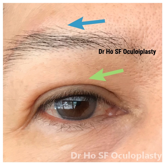 Post op: reduced eye bags appearance and smooth lower eyelid-cheek junction. Patient looks much more refreshed.