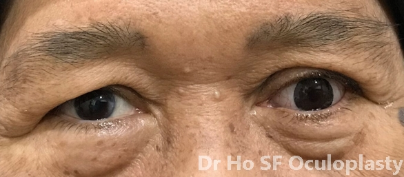 Post insertion of prosthesis: This patient is much more symmetrical and no one know actually she has lost one eye before.