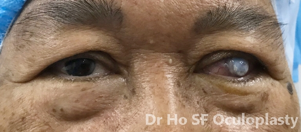 unsightly eye due to decompensated cornea.  Patient felt she is shunted socially and feel embarrassed about herself