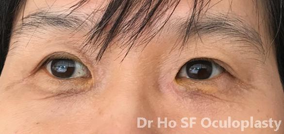 Post op: After repair, left eyelid look satisfactory.