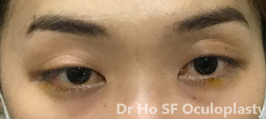 Pre op:  single eyelid with poorly formed fold and 'squinty' look due to wide epicanthic fold.