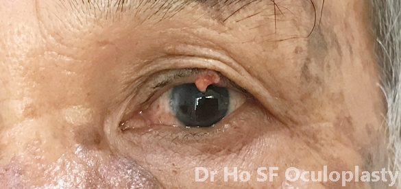 Pre op: Left upper eyelid lump persisted despite three attempts of incision and curettage by general ophthalmologist.